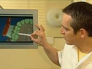 Mezizubní kartáčky - Jak správně používat mezizubní kartáčky - dentálny hygiena 4