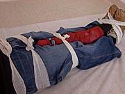 Zlomenina nohy - ošetrenie zlomeniny nohy - Prvá pomoc pri zlomeninách