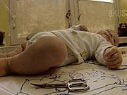 Strihanie nechtov u novorodencov  - Ako bábätku ostrihať nechty