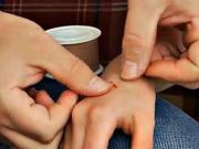 Drobné poranenia - ako ošetriť odreniny, rezné rany, krvácanie