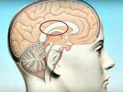Prvá pomoc pri mozgovom infarkte - mozgová cievna príhoda