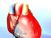 Prvá pomoc pri srdcovom infarkte  - infarkt myokardu